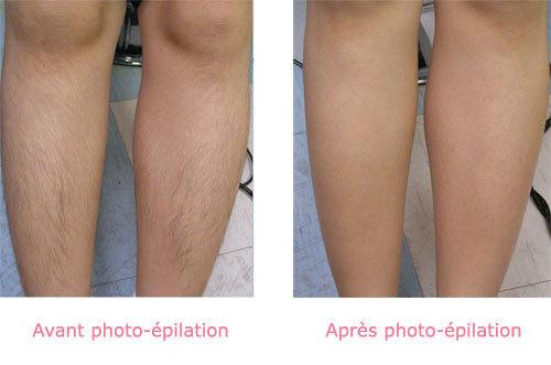 Photos avant/après Epilation Laser